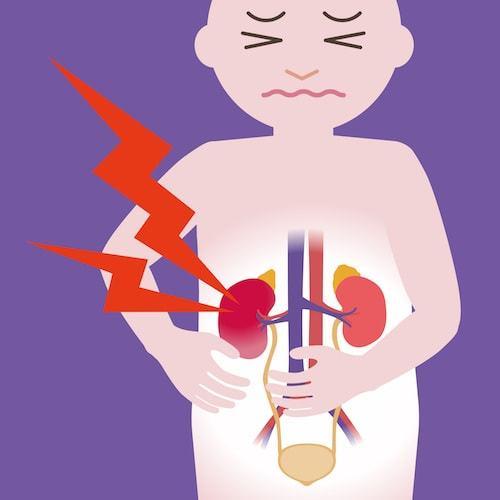潜血 原因 尿